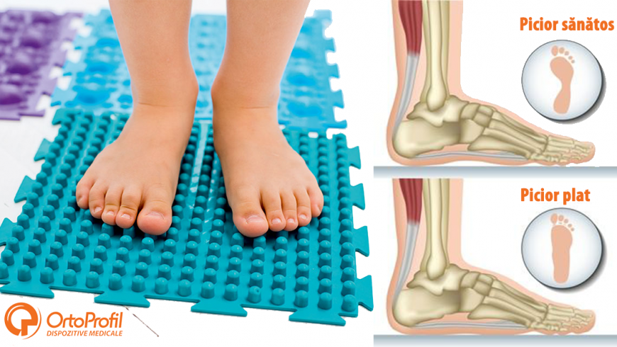 De ce este important controlul picioarelor la copii de la o vârstă fragedă?