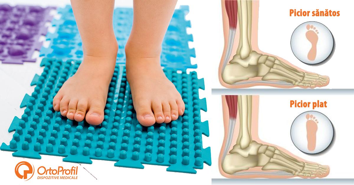 tratamentul artrozei piciorului cu picioarele plate articulațiile rănesc genunchii umărului