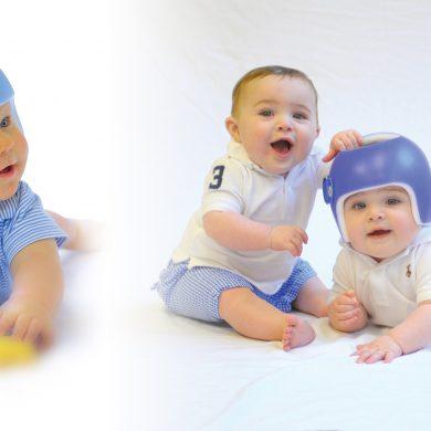 Casca magică – orteză unică pentru corectarea deformărilor craniene la copii
